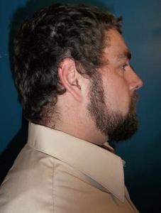 Gary St. Jock - Face Right Side