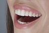 Sonja Wajih - Teeth/Mouth Model